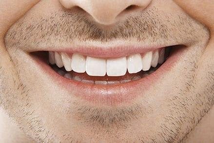 schimmelinfectie mond en keel